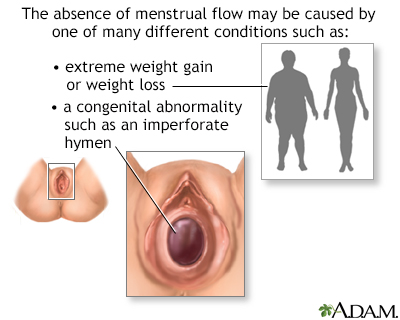 Absence of menstruation (amenorrhea)