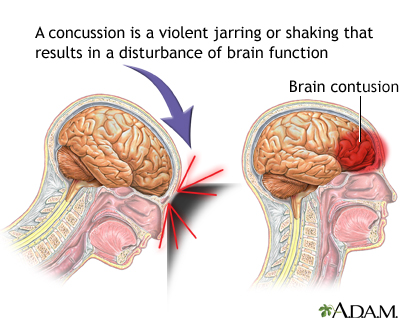 how to know if you have a minor concussion