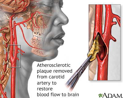 Endarterectomy