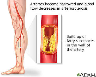 Arteriosclerosis of the extremities