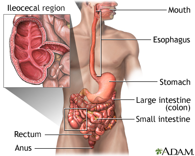 Crohn disease - affected areas