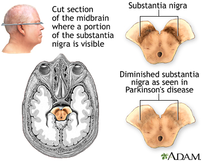 Substantia nigra and Parkinson disease