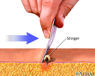 Stinger removal