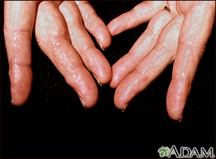 Amyloidosis on the fingers