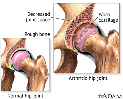 Arthritis in hip