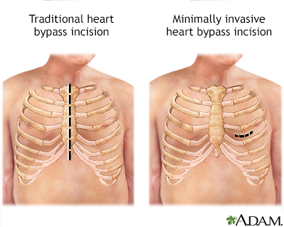 Heart bypass surgery incision
