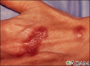 Mycobacterium marinum infection on the hand
