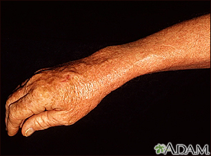 Lentigo - solar with erythema on the arm