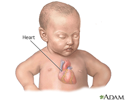 Patent ductus arteriosis (PDA) - series - Infant heart anatomy