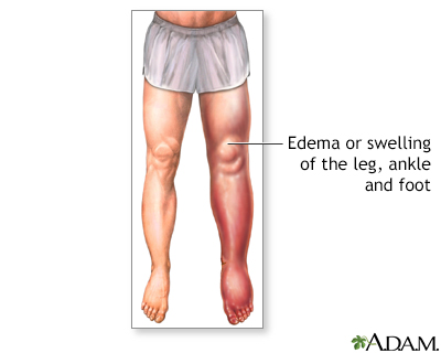 Lower leg edema