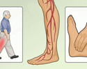 Type 2 Diabetes foot and leg care